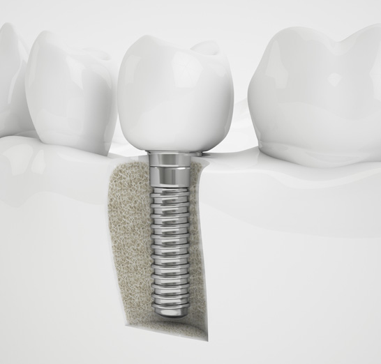 implant dentaire laval